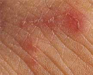 Scabies Bite